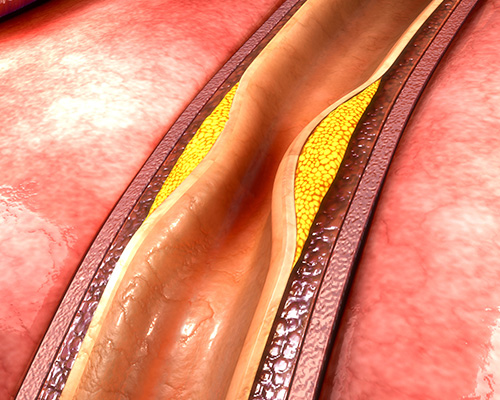 Atherectomy/Peripheral Artery Disease